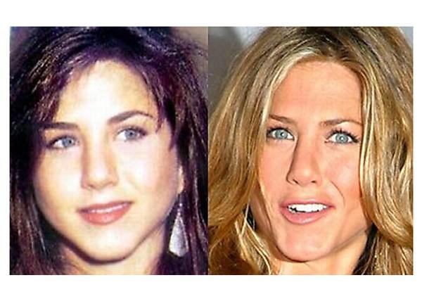 Jennifer Aniston Antes y despues de la cirugia