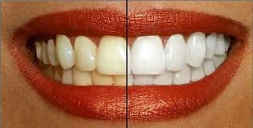 maquillaje-labios-dientes