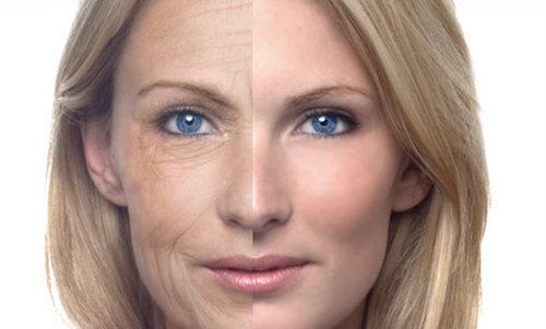 tratamientos-antiarrugas