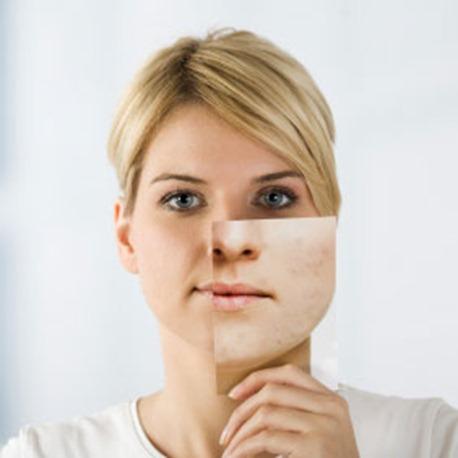 cicatrices piel